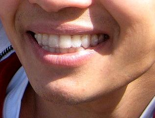 Pictures of Style your smile with affordable invisible braces cost in melbourne 1