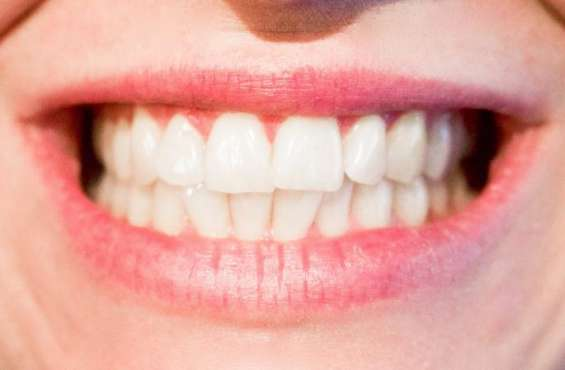 Pictures of Style your smile with affordable invisible braces cost in melbourne 5