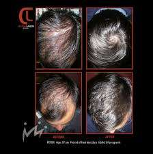 Hair loss treatment for men mens hair loss